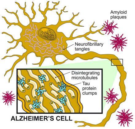 4f2aa63afdfc327aae6c8c77534d5176--dementia-types-dementia-causes.jpg