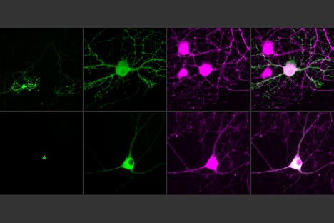 MIT-Single-Cell-Optogenetics_0