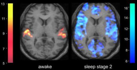sleep-brain.jpg