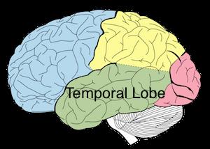 temporallobelabeledrobb.png